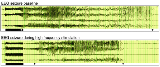 Brain Stimulation in Epilepsy—An Old Technique with a New