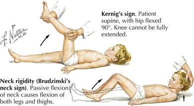 Image result for kernig sign