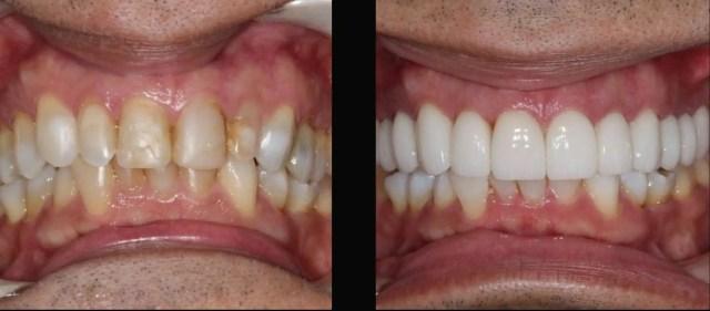 Nuevas coronas dentales