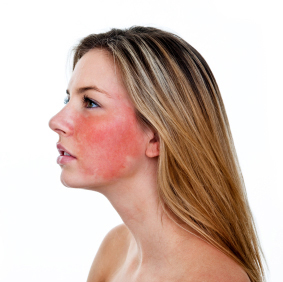 Facial Rosacea Clinical Trial