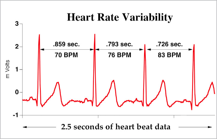 Heart Rate Variability Based Predictive Analytics