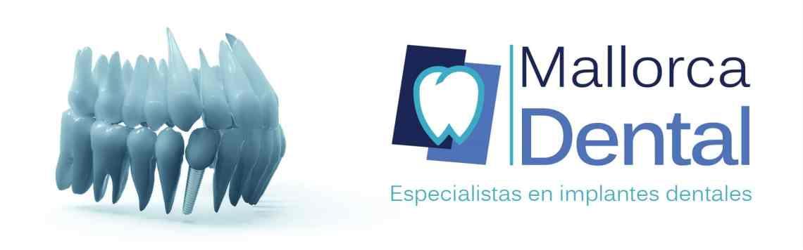 Implantes dentales en Palma de Mallorca - Clínica Mallorca Dental, tus dentistas en Palma.