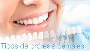 Tipos de prótesis dentales   Mallorca Dental, especialistas en prótesis dentales