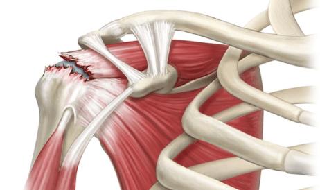 Manguito_lesion_hombro_rotador_clinica_martin_gomez_granada