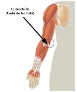 Epitrocleitis o codo de golfista