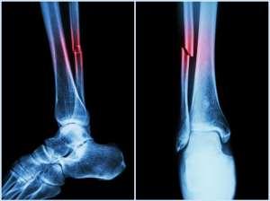 lesión de tibia y peroné