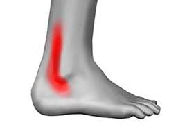 síndrome del pinzamiento posterior del tobillo