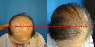 injerto capilar cadiz . Imágenes de antes y después de trasplante de pelo cadiz - dra maria jose sierra gudin - biofibre calvicie cadiz
