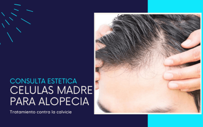 Terapia de células madre para alopecia