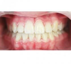 02-ortodoncia-autoligado
