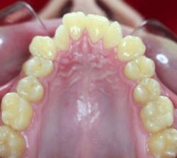 ortodoncia-lingual-antes-00