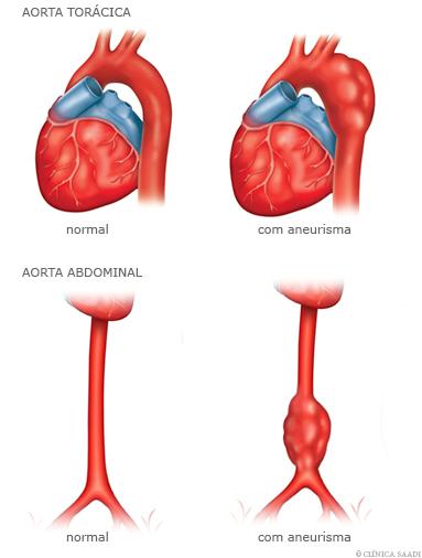 Aorta Torácica normaile com aneurisma e aorta abdominal normal e com aneurisma