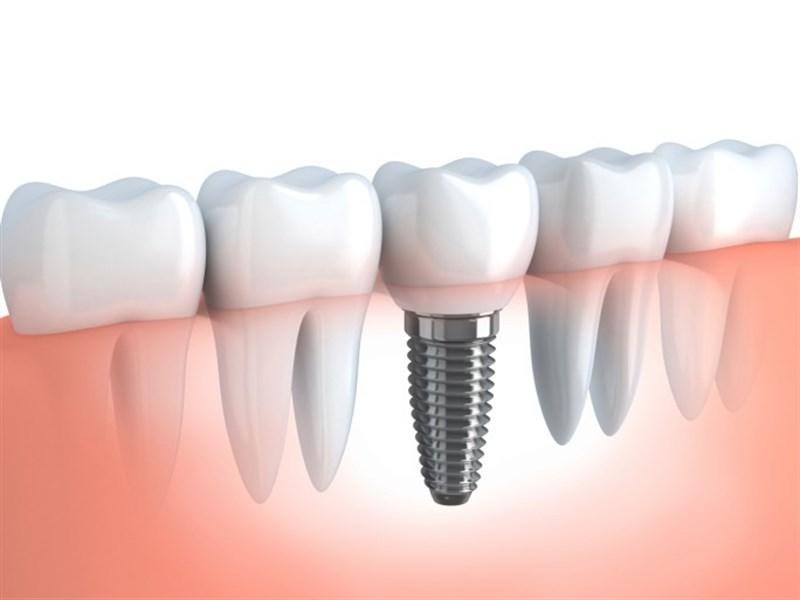 Implantes dentales: ¿qué son, qué puedo esperar de ellos y cómo cuidarlos?