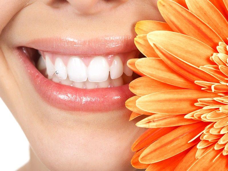 Preguntas frecuentes sobe las limpiezas dentales