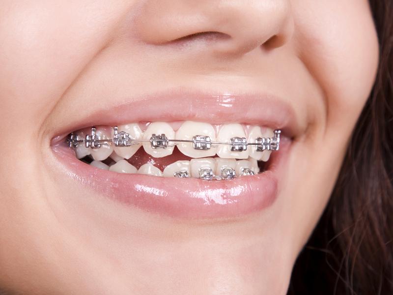 Curiosidades sobre la ortodoncia