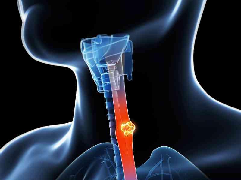 Mayor riesgo de cáncer de esófago con encías enfermas