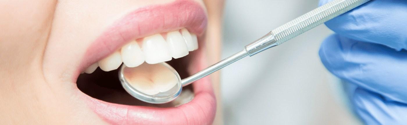 Tratamiento de periodoncia en Sabadell