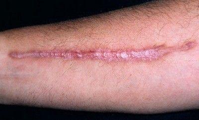 eliminacion de cicatrices 001