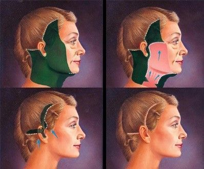 Remarkable, facial lifting procedures think, that