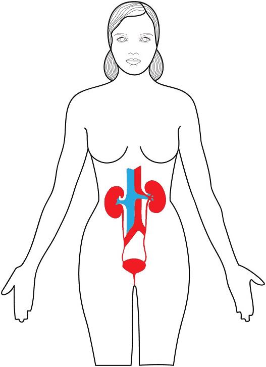 que es la urologia femenina