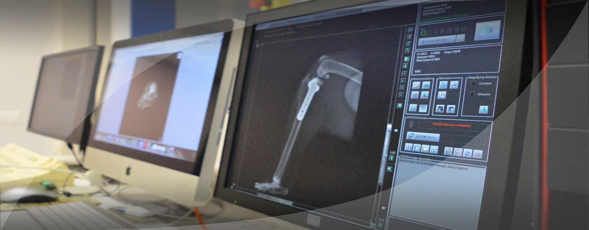 Slider_Chirurgia-Ortopedica