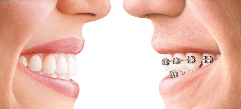 clinica-viana-novara_ortodonzia