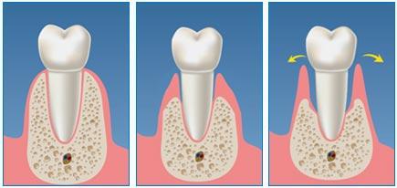 clinica-viana-novara_parodontite-1