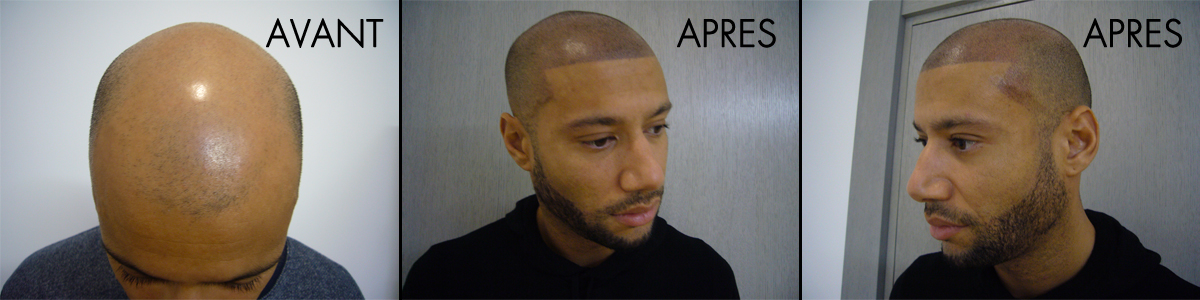 Scalp micropigmentation - Shaved effect - Xavier Delarue