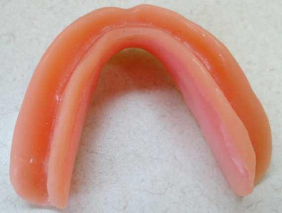 Clinique Cloutier denturologiste Montréal | Base molle