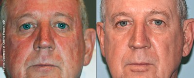 2 Months After 2 Forever Young BBL - Medspa and Laser Center | Clinique Dallas