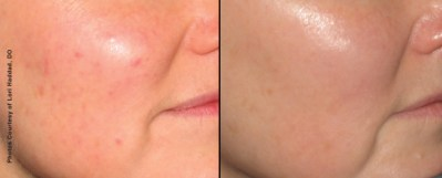 9 Weeks After 3 Forever Young BBL Treatments