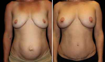 Tummy Tuck - Breast Augmentation Mastopexy 350cc