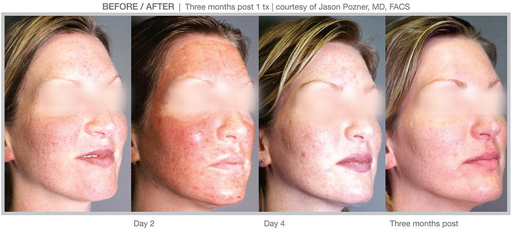 MicroLaserPeel Before and after, steps - Clinique Dallas Plastic Surgery, Medspa & Laser Center