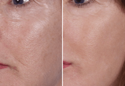 Nano Laser Peel Dallas 1- Medspa and Laser Center | Clinique Dallas
