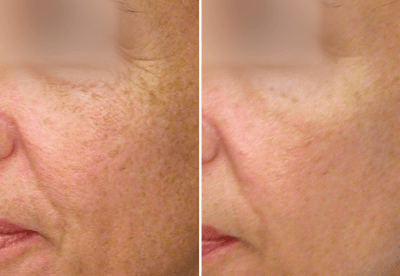 Nano Laser Peel Dallas 2 - Medspa and Laser Center | Clinique Dallas