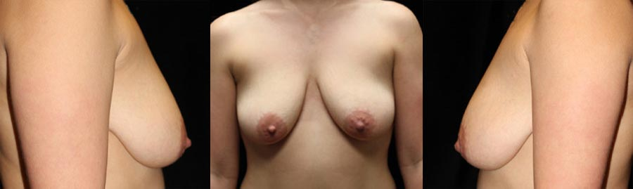 BRCA - Breast Reconstruction - Plastic Surgery, Medspa and Laser Center | Clinique Dallas
