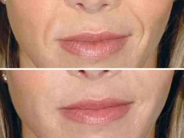 Dallas Restylane | Clinique Dallas Plastic Surgery, Medspa and Laser Center