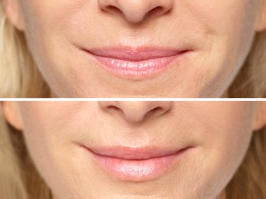 Dallas Restylane Silk | Clinique Dallas Plastic Surgery, Medspa and Laser Center