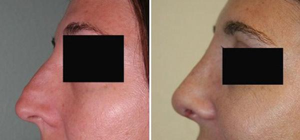 Rhinoplasty, Cosmetic Surgery - Plastic Surgery | Clinique Dallas