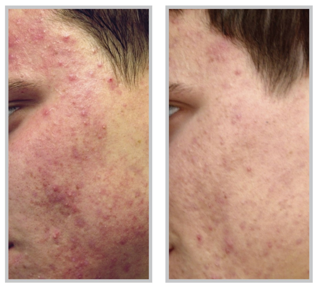 Acne Laser Treatment - Medspa and Laser Center | Clinique Dallas