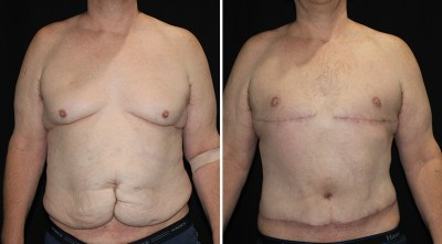 Tummy Tuck / Abdominoplasty / Abdominoplastia - Plastic Surgery Medspa and Laser Center Clinique Dallas