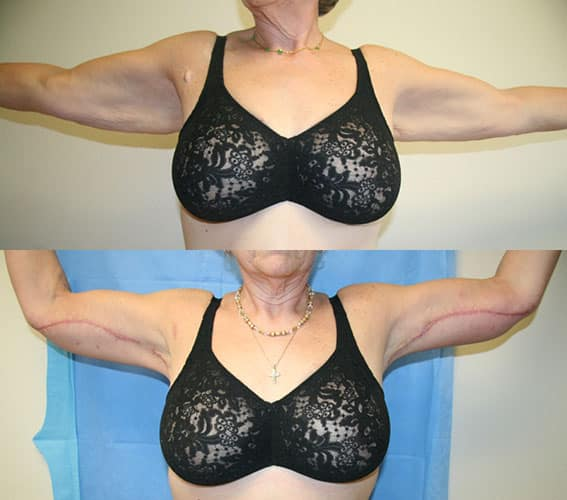 Arm Lift - Brachioplasty - Plastic Surgery | Clinique Dallas