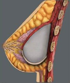 Breast Augmentation Cosmetic Surgery, Implant Beneath the Muscle / Aumento de Senos - Clinique Dallas Plastic Surgery
