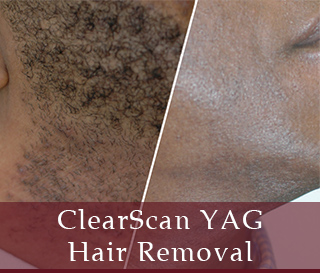 ClearScan YAG Hair Removal - Dallas Medspa and Laser Center | Clinique Dallas