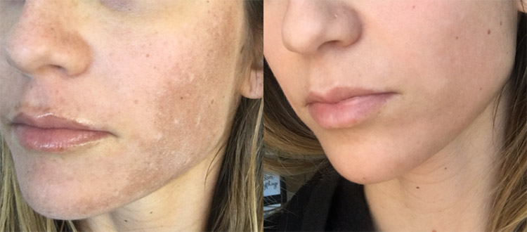 Melasma Before and After - Clinique Dallas Plastic Surgery