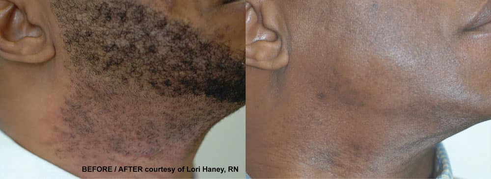 ClearScan YAG Hair Removal - Dark Skin - Medspa and Laser Center | Clinique Dallas