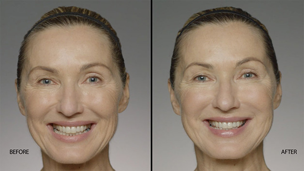 Dallas Restylane Refyne | Clinique Dallas Plastic Surgery, Medspa and Laser Center