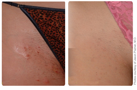 Dallas Laser Hair Removal Summer Ready Medspa Laser Center