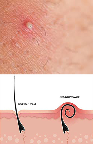 Folliculitis - Ingrown Hair - Clinique Dallas Plastic Surgery