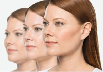 Dallas Kybella - Clinique Dallas Plastic Surgery, Medspa and Laser Center
